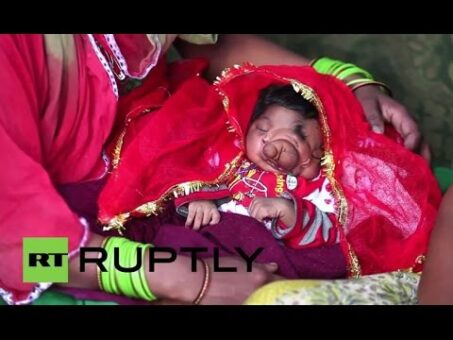 India: 'Ganesh's wife' - Baby born with 'trunk' named after Hindu god
